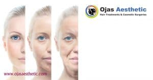 Read more about the article Thread Lift Surgeries