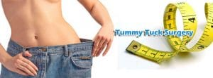 Read more about the article Tummy tuck Surgery