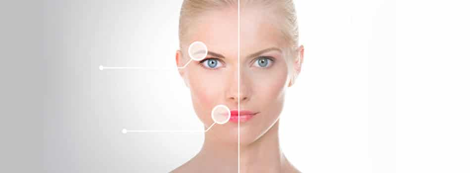 Read more about the article Face & Neck Lift